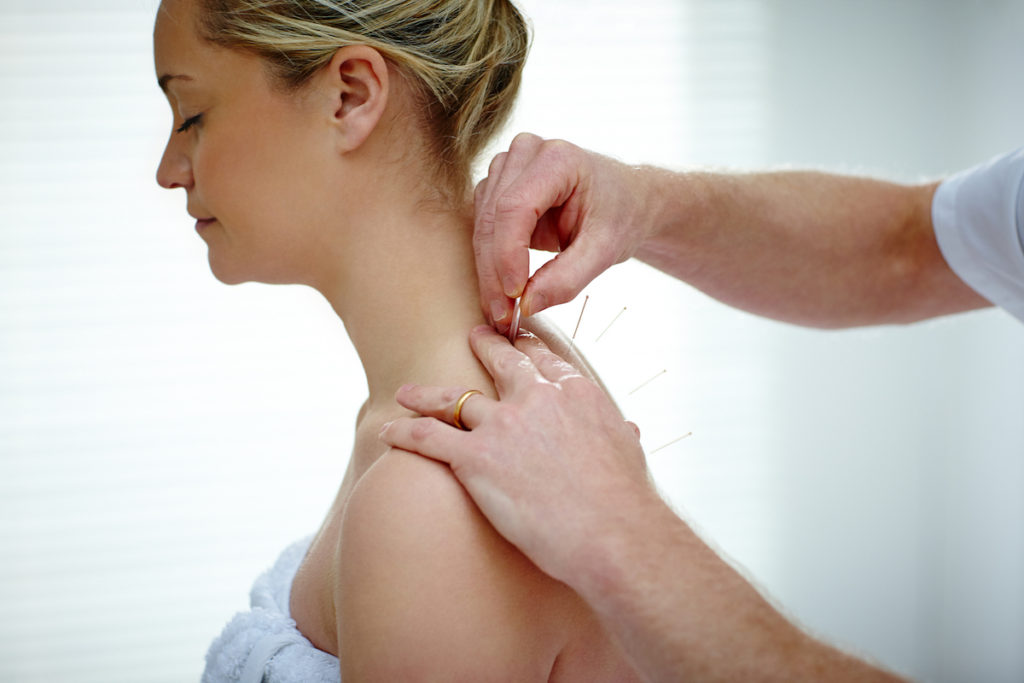 How dry needling can benefit you