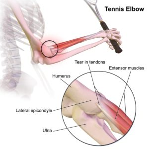 Tennis Elbow: do you have it?